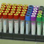 Медицинский офис «INVITRO» предлагает сдать анализы за 1 рубль!
